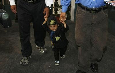 Самый маленький человек на планете умер в Непале в возрасте 27 лет