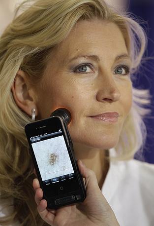 Устройство для определения заболеваний кожи с iPhone