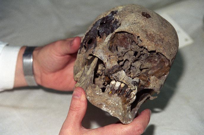 Череп Николая II, найденный при раскопках в Екатеринбурге