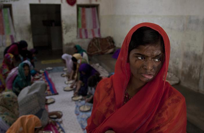 Согласно докладу ЮНИСЕФ, опубликованному в октябре 2014 года (составлен на основе данных за 2012 год), ежегодно в результате жестокого обращения погибает около 10% девочек и примерно столько же становится жертвами физического и сексуального насилия. На фото: 15-летняя Шабана живет в детском доме, куда ее привели родственники после того, как ее мачеха облила девушку кислотой. Карачи, Пакистан