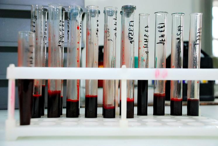 Ученые изМонреаля отыскали способ полного уничтожения ВИЧ